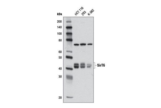 Western blot analysis of extracts from HCT 116, 293, and K-562 cells using SirT6 (D10A4) Rabbit mAb.