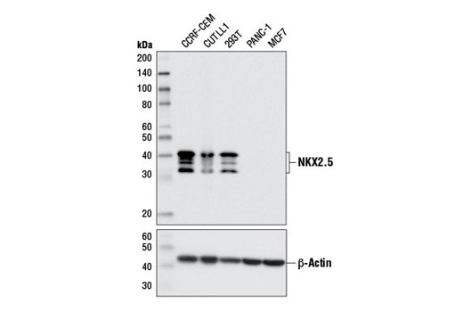 Western blot analysis of extracts from various cell lines using NKX2.5 (E1Y8H) Rabbit mAb (upper) and β-Actin (D6A8) Rabbit mAb #8457 (lower).