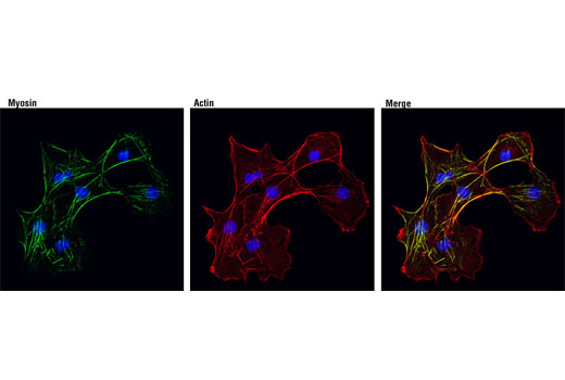 Monoclonal Antibody Lateral Ventricle Development