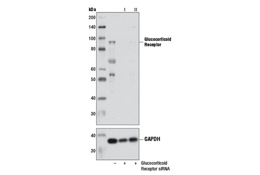 Western blot analysis of extracts from HeLa cells, transfected with 100 nM SignalSilence<sup>®</sup> Control siRNA (Unconjugated) #6568 (-), SignalSilence<sup>®</sup> Glucocorticoid Receptor siRNA I #6508 (+), or SignalSilence<sup>® </sup>Glucocorticoid Receptor siRNA II (+), using Glucocorticoid Receptor (D8H2) XP<sup>®</sup> Rabbit mAb #3660 (upper) or GAPDH (D16H11) XP<sup>®</sup> Rabbit mAb #5174 (lower). The Glucocorticoid Receptor (D8H2) XP<sup>®</sup> Rabbit mAb confirms silencing of glucocorticoid receptor expression, while the GAPDH (D16H11) XP<sup>®</sup> Rabbit mAb is used as a loading control.