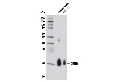 Western blot analysis of extracts from human and rat brain using CEND1 (D6A6) Rabbit mAb.
