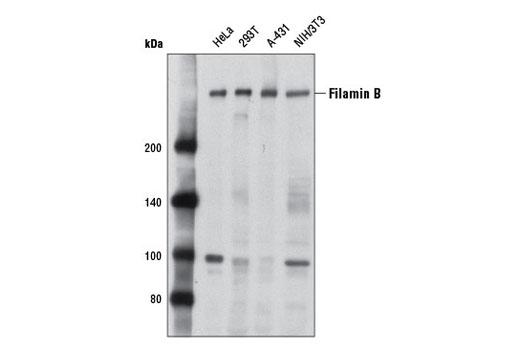 Polyclonal Antibody - Filamin B Antibody - Western Blotting, UniProt ID O75369, Entrez ID 2317 #8949 - Primary Antibodies