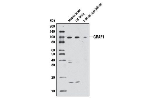 Western blot analysis of extracts from mouse brain, rat brain, and human cerebellum using GRAF1 Antibody.