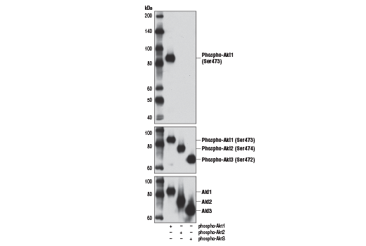 Western blot analysis of purified recombinant phospho-Akt1, phospho-Akt2 and phospho-Akt3 proteins using Phospho-Akt1 (Ser473) (D7F10) XP<sup>®</sup> Rabbit mAb (Akt1 Specific) (upper), Phospho-Akt (Ser473) (D9E) XP<sup>®</sup> Rabbit mAb #4060 (middle) and Akt (pan) (C67E7) Rabbit mAb #4691 (lower).