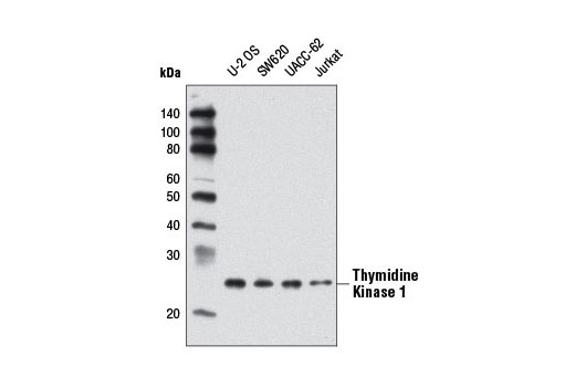 Polyclonal Antibody - Thymidine Kinase 1 Antibody - Immunoprecipitation, Western Blotting, UniProt ID P04183, Entrez ID 7083 #8960 - #8960