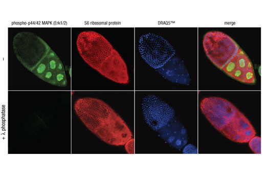 Image 12: Phospho-EGF Receptor Pathway Antibody Sampler Kit