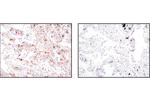 Immunohistochemical analysis of paraffin-embedded human lung carcinoma, untreated (left) or λ phosphatase-treated (right), using Phospho-p44/42 MAPK (Erk1/2) (Thr202/Tyr204) (D13.14.4E) XP<sup>®</sup> Rabbit mAb.