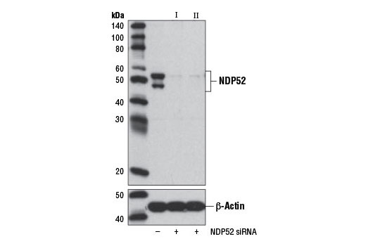 SignalSilence® NDP52 siRNA I - Transfection, UniProt ID Q13137, Entrez ID 10241 #8964 - Immunology and Inflammation