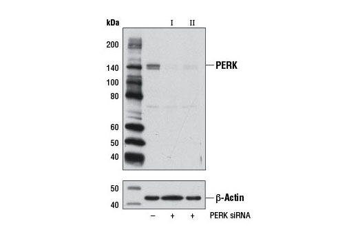 Western blot analysis of extracts from 293T cells, transfected with 100 nM SignalSilence<sup>®</sup> Control siRNA (Unconjugated) #6568 (-), SignalSilence<sup>®</sup> PERK siRNA I (+), or SignalSilence<sup>® </sup>PERK siRNA II #9026 (+), using PERK (C33E10) Rabbit mAb #3192 (upper) or β-Actin (D6A8) Rabbit mAb #8457 (lower). The PERK (C33E10) Rabbit mAb confirms silencing of PERK expression, while the β-Actin (D6A8) Rabbit mAb is used as a loading control.