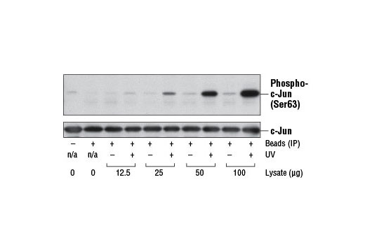 Image 1: SAPK/JNK Kinase Assay Kit (Nonradioactive)
