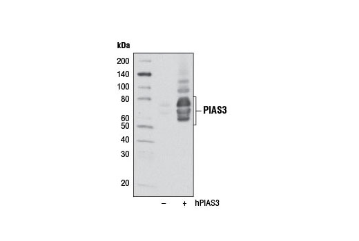 Western blot analysis of extracts from 293T cells, mock transfected (-) or transfected with a construct expressing full-length human PIAS3 (hPIAS3; +), using PIAS3 (D5F9) XP<sup>®</sup> Rabbit mAb.