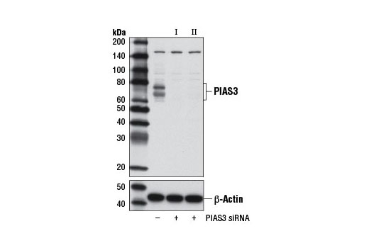 Western blot analysis of extracts from RD cells, transfected with 100 nM SignalSilence<sup>®</sup> Control siRNA (Unconjugated) #6568 (-), SignalSilence<sup>®</sup> PIAS3 siRNA I #9073 (+), or SignalSilence<sup>®</sup> PIAS3 siRNA II #9031 (+), using PIAS3 (D5F9) XP<sup>®</sup> Rabbit mAb (upper) or β-Actin (D6A8) Rabbit mAb #8457 (lower). The PIAS3 (D5F9) XP<sup>®</sup> Rabbit mAb confirms silencing of PIAS3 expression, while the β-Actin (D6A8) Rabbit mAb is used as a loading control.