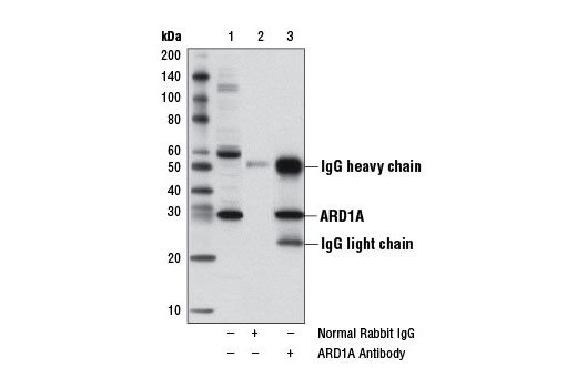 Polyclonal Antibody Immunoprecipitation Acetyltransferase Activity