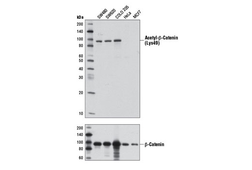 Western blot analysis of extracts from various cell lines using Acetyl-β-Catenin (Lys49) (D7C2) Rabbit mAb (upper) or β-Catenin (D10A8) XP<sup>®</sup> Rabbit mAb #8480 (lower).