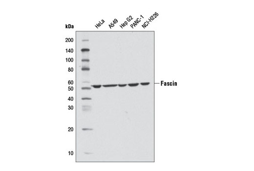 Western blot analysis of extracts from various cell lines using Fascin (D1A8) Rabbit mAb.
