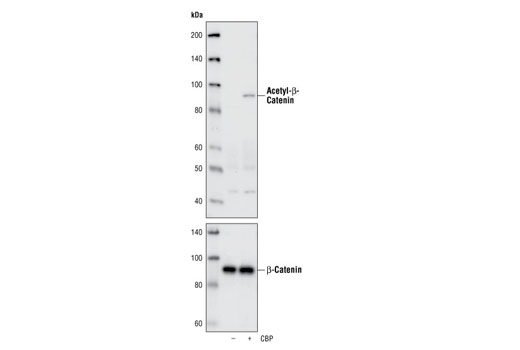 Western blot analysis of total cell lysates from 293 cells, untransfected or transiently transfected with a construct expressing CBP, using Acetyl-β-Catenin (Lys49) Antibody (Top), or total β-Catenin Antibody (Amino-terminal Antigen) #9581 (Bottom).