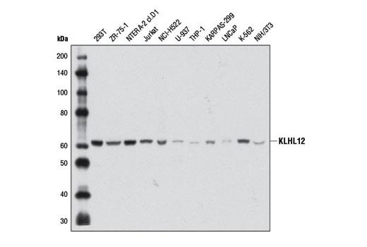 Monoclonal Antibody - KLHL12 (2G2) Mouse mAb - Western Blotting, UniProt ID Q53G59, Entrez ID 59349 #9406 - Primary Antibodies