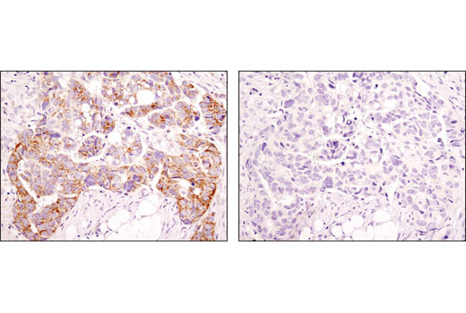 Immunohistochemical analysis of paraffin-embedded human ovarian carcinoma using Mitofusin-2 (D2D10) Rabbit mAb in the presence of control peptide (left) or antigen-specific peptide (right).