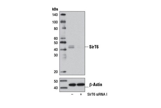 Western blot analysis of extracts from HeLa cells, transfected with 100 nM SignalSilence<sup>®</sup> Control siRNA (Unconjugated) #6568 (-) or SignalSilence<sup>®</sup> SirT6 siRNA I (+), using SirT6 (D10A4) Rabbit mAb #8771 (upper) or β-Actin (D6A8) Rabbit mAb #8457 (lower). The SirT6 (D10A4) Rabbit mAb confirms silencing of SirT6 expression, while the β-Actin (D6A8) Rabbit mAb is used as a loading control.