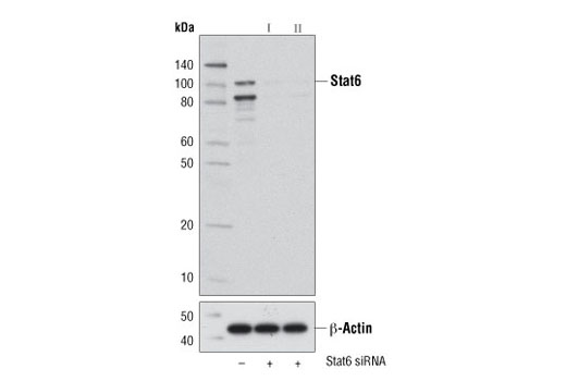 Western blot analysis of extracts from L-929 cells, transfected with 100 nM SignalSilence<sup>®</sup> Control siRNA (Unconjugated) #6568 (-), SignalSilence<sup>®</sup> Stat6 siRNA I (Mouse Specific) #9396 (+), or SignalSilence<sup>® </sup>Stat6 siRNA II (+), using Stat6 (D3H4) Rabbit mAb #5397 (upper) or β-Actin (D6A8) Rabbit mAb #8457 (lower). The Stat6 (D3H4) Rabbit mAb confirms silencing of Stat6 expression, while the β-Actin (D6A8) Rabbit mAb is used as a loading control.