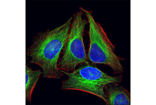 Confocal immunofluorescent analysis of HeLa cells, using α-Tubulin (11H10) Rabbit mAb (green). Actin filaments have been labeled with Alexa Fluor® 555 phalloidin (red). Blue pseudocolor = DRAQ5<sup>®</sup> #4084 (fluorescent DNA dye).