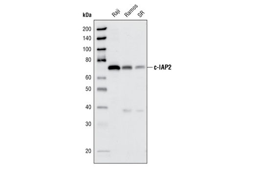 Western blot analysis of extracts from Raji, Ramos and SR cell lines, using c-IAP2 (58C7) Rabbit mAb.