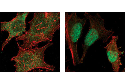 Confocal immunofluorescent analysis of HeLa cells, untreated (left) or TGF-β treated (right), using Smad2 (86F7) Rabbit mAb (green). Actin filaments have been labeled with Alexa Fluor® 555 phalloidin (red)