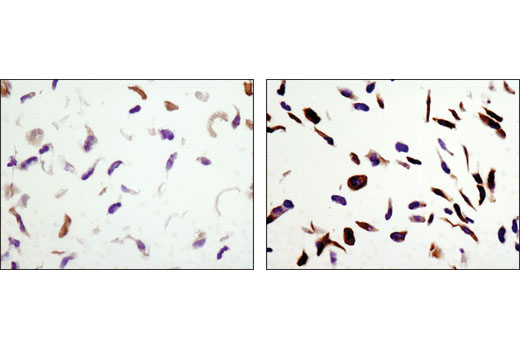 Immunohistochemical analysis of paraffin-embedded NCI-H2228 cell pellets, untreated (left) or phenformin-treated (right), using Phospho-Acetyl-CoA Carboxylase (Ser79) (D7D11) Rabbit mAb.