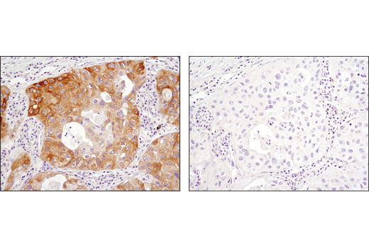 Immunohistochemical analysis of paraffin-embedded human lung carcinoma, untreated (left) or λ phosphatase-treated (right), using Phospho-Acetyl-CoA Carboxylase (Ser79) (D7D11) Rabbit mAb.