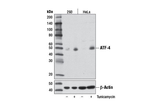 Western blot analysis of extracts from 293 and HeLa cells, untreated (-) or tunicamycin-treated (2 μg/ml, 8 hr; +), using ATF-4 (D4B8) Rabbit mAb (upper) or β-Actin (D6A8) Rabbit mAb #8457 (lower).