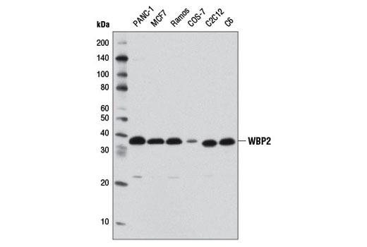 Polyclonal Antibody - WBP2 Antibody - Western Blotting, UniProt ID Q969T9, Entrez ID 23558 #11831, Development