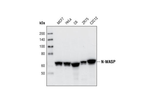 Western blot analysis of extracts from various cell types, using N-WASP (30D10) Rabbit mAb.