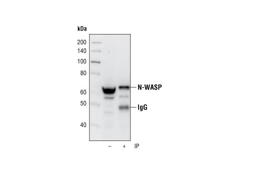 Immunoprecipitation of N-WASP from MCF-7 cells, using N-WASP (30D10) Rabbit mAb. Western blot was performed using the same antibody.