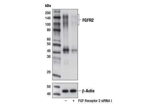 Western blot analysis of extracts from KATO III cells, transfected with 100 nM SignalSilence<sup>®</sup> Control siRNA (Unconjugated) #6568 (-) or SignalSilence<sup>®</sup> FGF Receptor 2 siRNA I #12600 (+), using FGF Receptor 2 (D4H9) Rabbit mAb (upper) or β-Actin (D6A8) Rabbit mAb #8457 (lower).