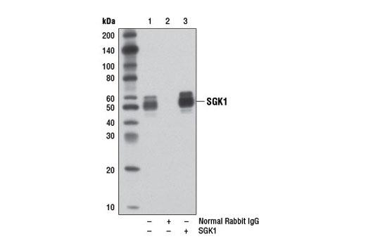 Human SGK1