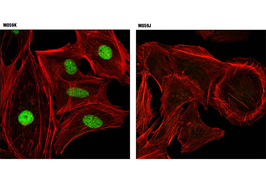 Confocal immunofluorescent analysis of M059K (DNA-PKcs wild-type; left) and M059J (DNA-PKcs deficient; right) cells using DNA-PKcs (3H6) Mouse mAb (green). Actin filaments were labeled with DY-554 phalloidin (red).
