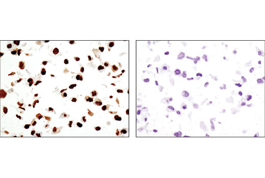 Immunohistochemical analysis of paraffin-embedded cell pellets, M059K (DNA-PKcs wild-type; left) or M059J (DNA-PKcs deficient; right), using DNA-PKcs (3H6) Mouse mAb.