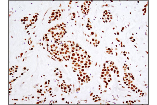 Immunohistochemical analysis of paraffin-embedded human breast carcinoma using DNA-PKcs (3H6) Mouse mAb.