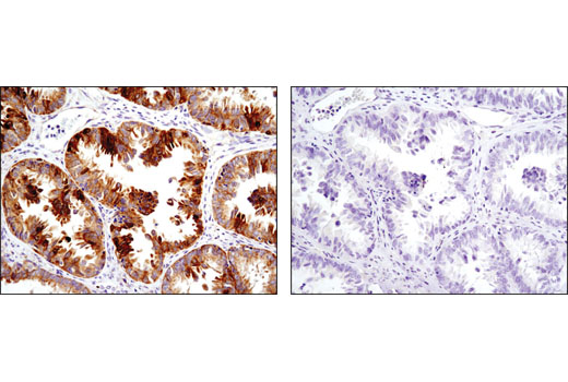 Immunohistochemical analysis of paraffin-embedded human ovarian carcinoma using Cox2 (D5H5) XP<sup>®</sup> Rabbit mAb in the presence of control peptide (left) or antigen-specific peptide (right).