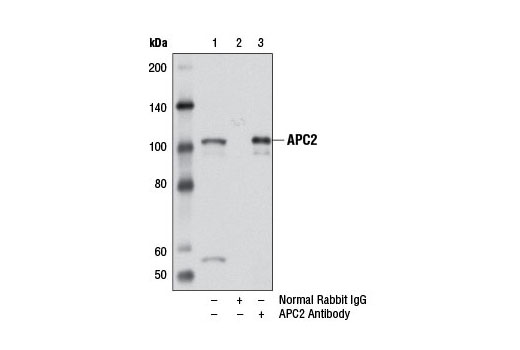 Immunoprecipitation of APC2 from 293T cell extracts, using Normal Rabbit IgG #2729 (lane 2) or APC2 Antibody (lane 3). Lane 1 is 10% input. Western blot analysis was performed using APC2 Antibody.