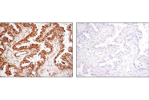 Immunohistochemical analysis of paraffin-embedded human ovarian carcinoma using HSP60 (D6F1) XP<sup>®</sup> Rabbit mAb in the presence of control peptide (left) or antigen-specific peptide (right).