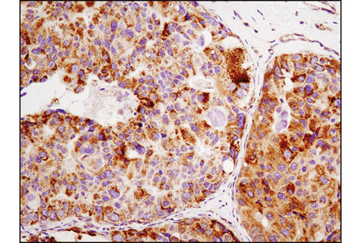 Immunohistochemical analysis of paraffin-embedded human breast carcinoma using HSP60 (D6F1) XP<sup>®</sup> Rabbit mAb.