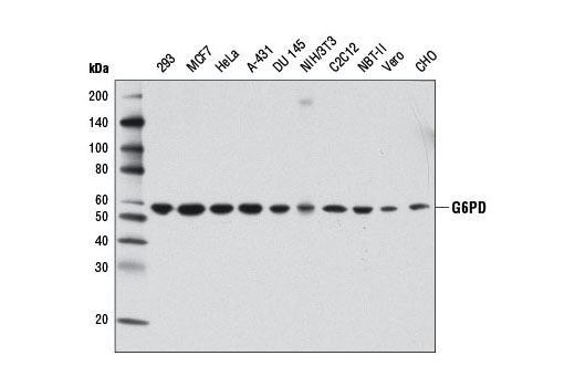 Western blot analysis of extracts from various cell lines using G6PD (D5D2) Rabbit mAb.