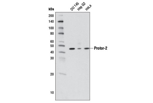 Western blot analysis of extracts from DU 145, Hep G2, and HeLa cells using Protor-2 (D19A5) Rabbit mAb.