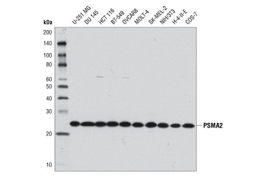 Western blot analysis of extracts from various cell lines using PSMA2 (D3A4) Rabbit mAb.