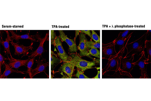 Confocal immunofluorescent analysis of NIH/3T3 cells, serum-starved (left), treated with TPA #4174 (200 nM, 15 min; center), or treated with TPA followed by λ phosphatase (right), using Phospho-p90RSK (Ser380) (D3H11) Rabbit mAb (green). Actin filaments were labeled with DY-554 phalloidin (red). Blue pseudocolor = DRAQ5<sup>®</sup> #4084 (fluorescent DNA dye).