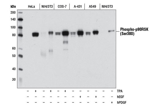 Western blot analysis of extracts from various cell lines, starved overnight and either untreated (-) or treated (+) with TPA #4174 (200 nM, 15 min), Human Epidermal Growth Factor (hEGF) #8916 (100 ng/mL, 15 min), or Human Platelet-Derived Growth Factor BB (hPDGF-BB) #8912 (100 ng/mL, 15 min) as indicated, using Phospho-p90RSK (Ser380) (D3H11) Rabbit mAb.