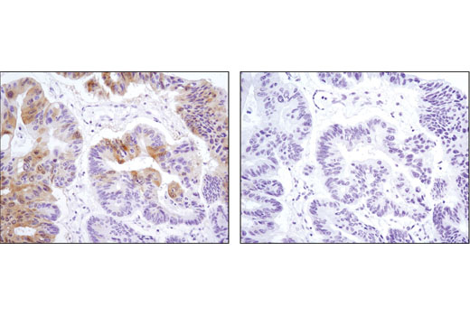 Immunohistochemical analysis of paraffin-embedded human colon carcinoma, control (left) or λ phosphatase-treated (right), using Phospho-p90RSK (Ser380) (D3H11) Rabbit mAb.