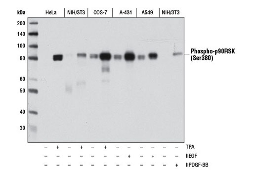 Western blot analysis of extracts from various cell lines, starved overnight and untreated (-) or treated with either TPA #4174 (200 nM, 15 min; +), hEGF #8916 (100 ng/ml, 15 min; +), or hPDGF-BB #8912 (100 ng/ml, 15 min; +), using Phospho-p90RSK (Ser380) (D5D8) Rabbit mAb.