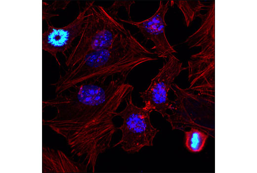 Confocal immunofluorescent analysis of HeLa cells using Ki-67 (D3B5) Rabbit mAb (Alexa Fluor<sup>®</sup> 647 Conjugate) (blue pseudocolor) and Phospho-Histone H3 (Ser10) (D2C8) XP<sup>®</sup> Rabbit mAb (Alexa Fluor<sup>®</sup> 488 Conjugate) #3465 (green). Actin filaments were labeled with DY-554 phalloidin (red).